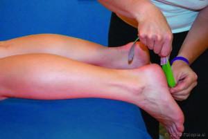 Fizio Pia, primeri kineziološkega tapinga, poškodba ahilove tetive 1
