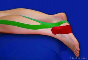 Fizio Pia, primeri kineziološkega tapinga, poškodba ahilove tetive 2