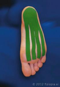 Fizio Pia, primeri kineziološkega tapinga - plantarni fascitis 1