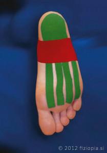 Fizio Pia, primeri kineziološkega tapinga - plantarni fascitis 2